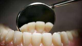 رسالة مرعبة تصل إلى 560 مريضا زاروا عيادة أسنان