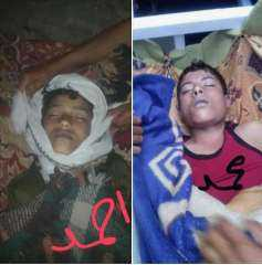 بالصور.. انتحار طفل جديد في تعز بعد 10 أيام من انتحار آخر