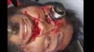 فيديو دامٍ.. إصابة قاتلة تخترق رأس متظاهر عراقي