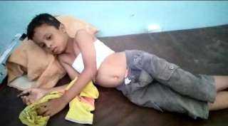 ميليشيا الحوثي تصيب طفلا في منطقة حيس